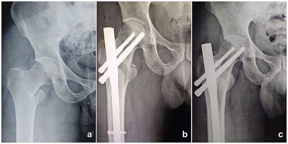 Radiograph-of-45-year-old-male-with-31A1-intertrochanteric-fracture-fixed-with-proximal-femur-nail.