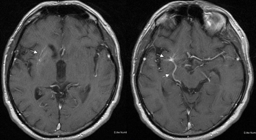 T1-magnetic-resonance-imaging-(MRI)-of-the-brain-with-contrast-showing-right-sided-developmental-venous-anomaly-(DVA)