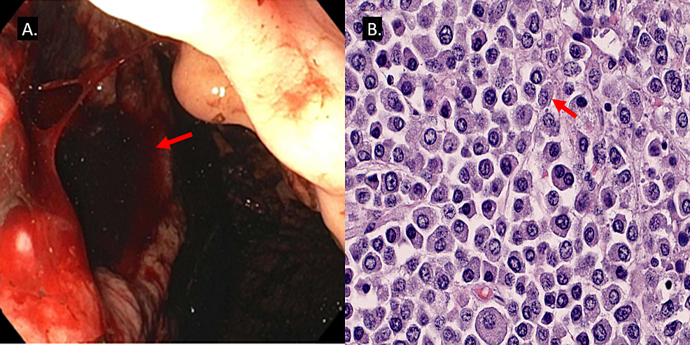 Endoscopic-image-(A)-and-histological-section-(B)