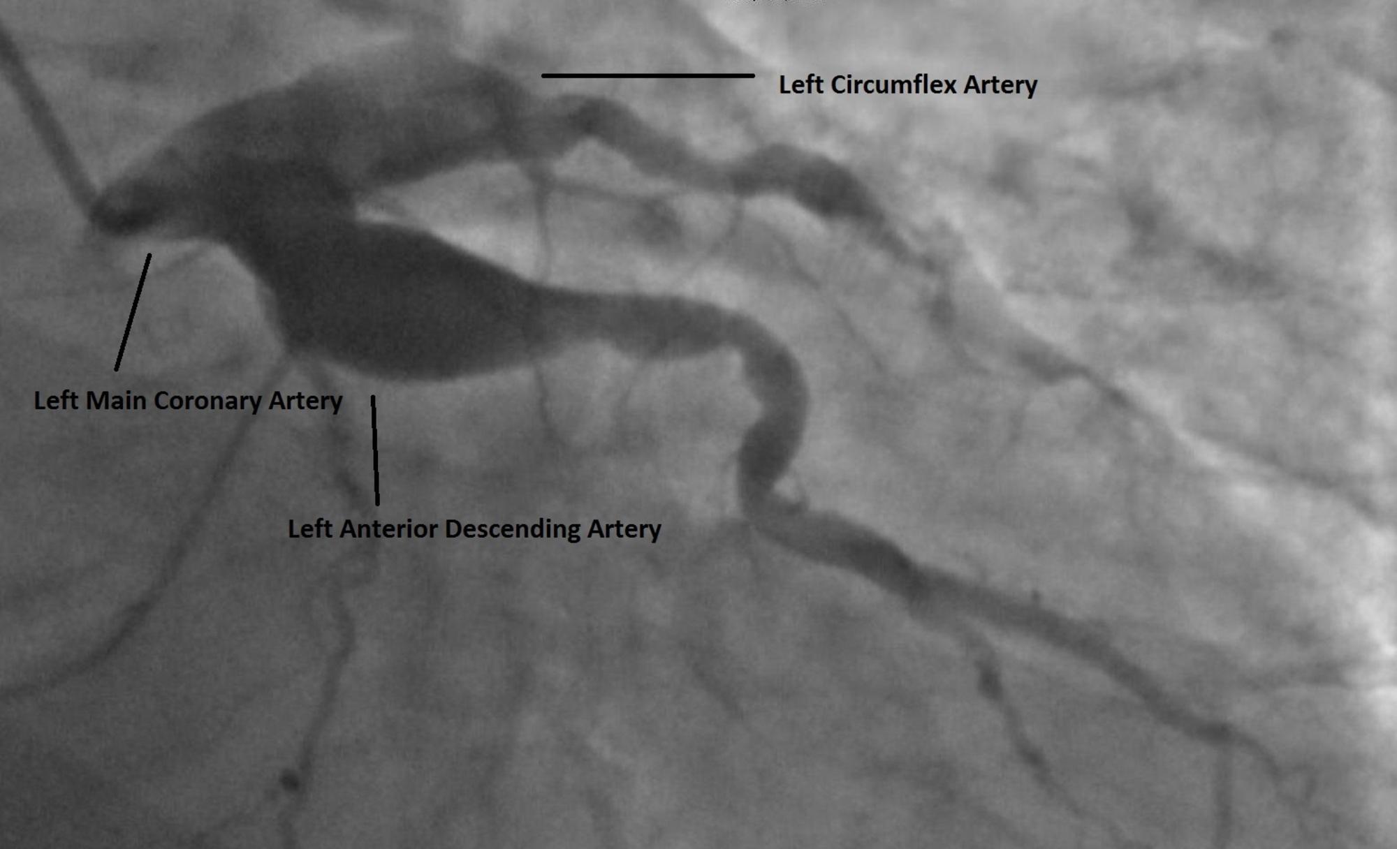 Cureus | Large Coronary Arteries Mean No Chance of a Heart
