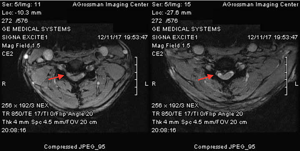 Axial-MRI-of-cervical-spine