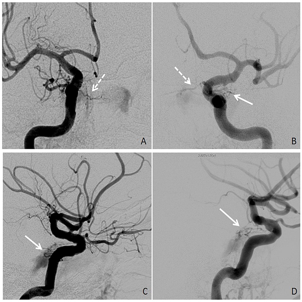 Bilateral-Internal-Carotid-Artery-Angiography