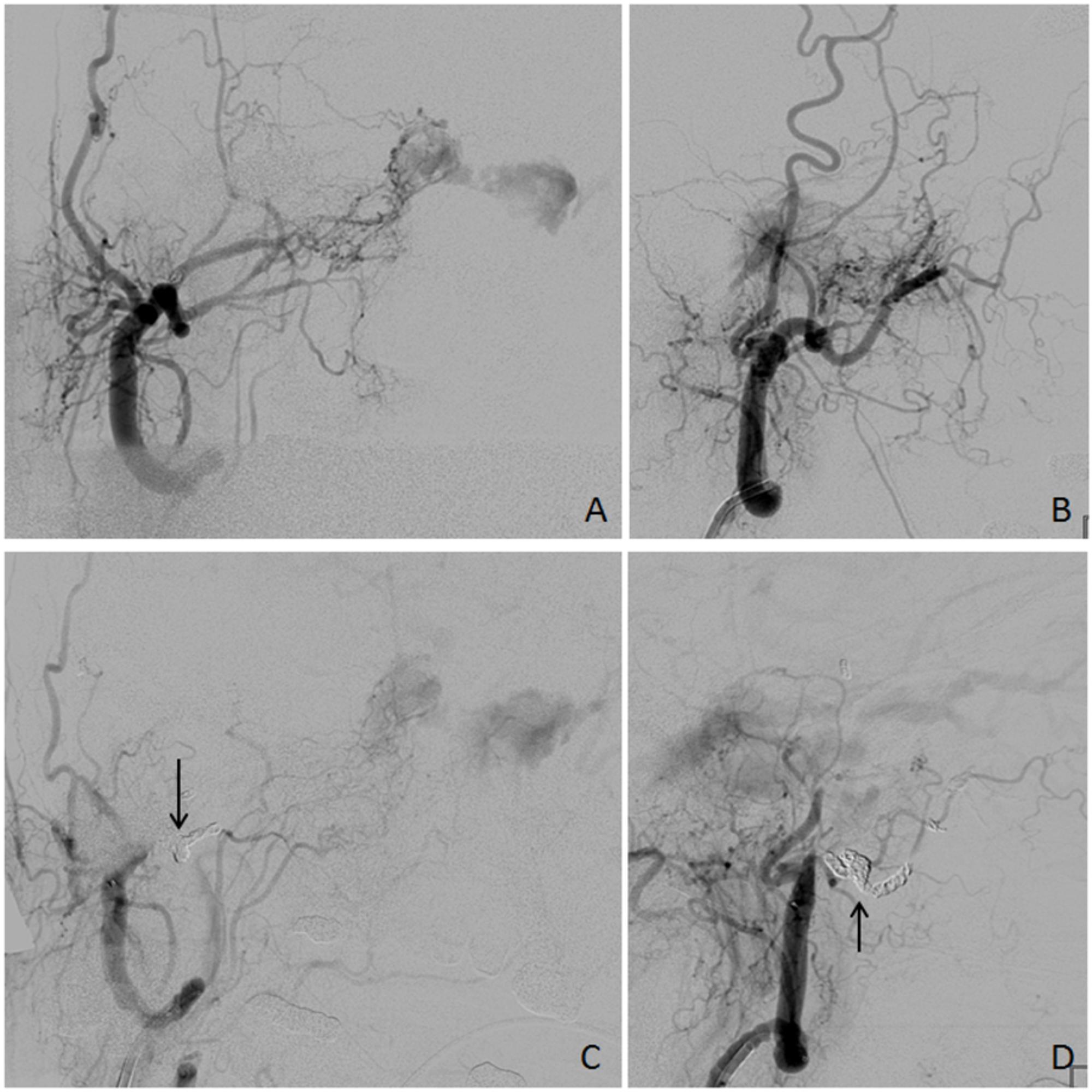 Right-External-Carotid-Artery-Angiography