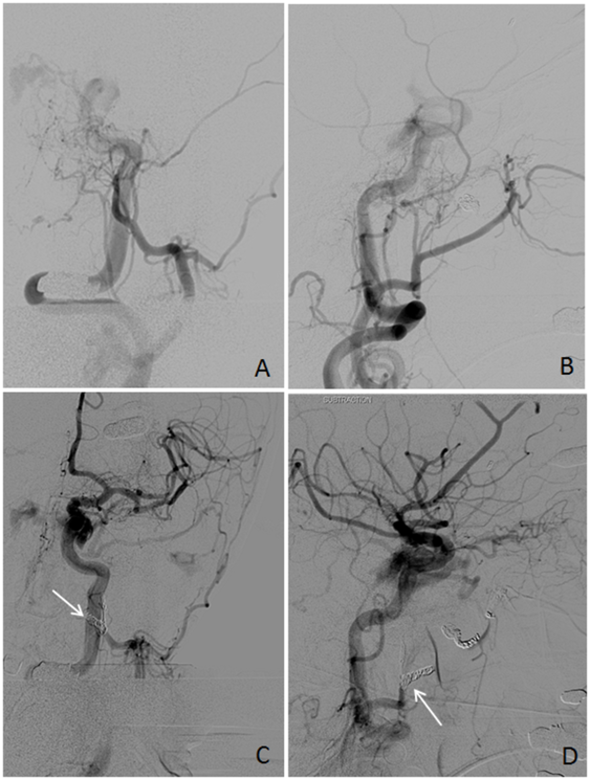 Left-External-Carotid-Artery-Angiography