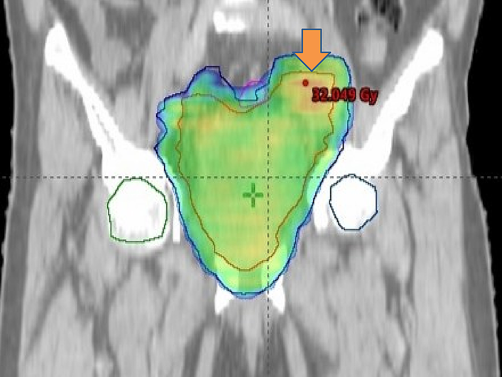 The-figure-showing-radiation-planning.-Palliative-radiation-was-given-to-bladder-and-internal-iliac-lymph-node.
