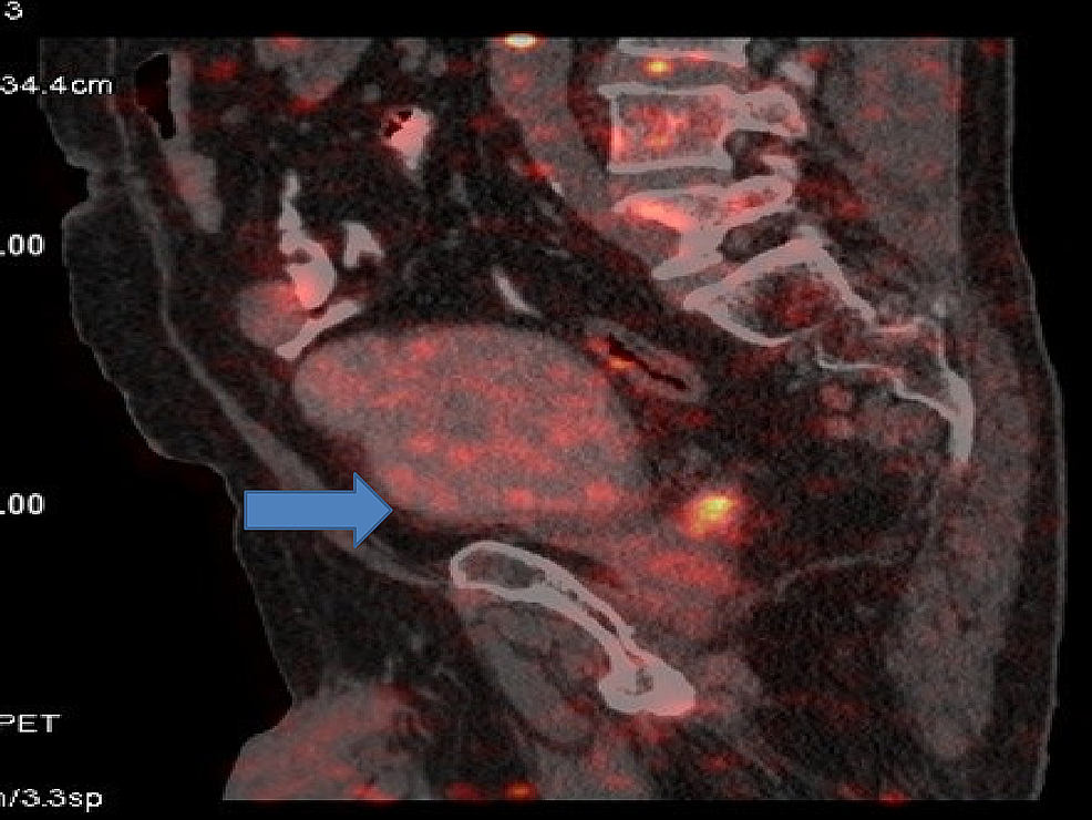 Positron-emission-tomography-(PET)-done-after-17-months-of-starting-radiation-and-immunotherapy-showing-complete-remission-in-urinary-bladder.