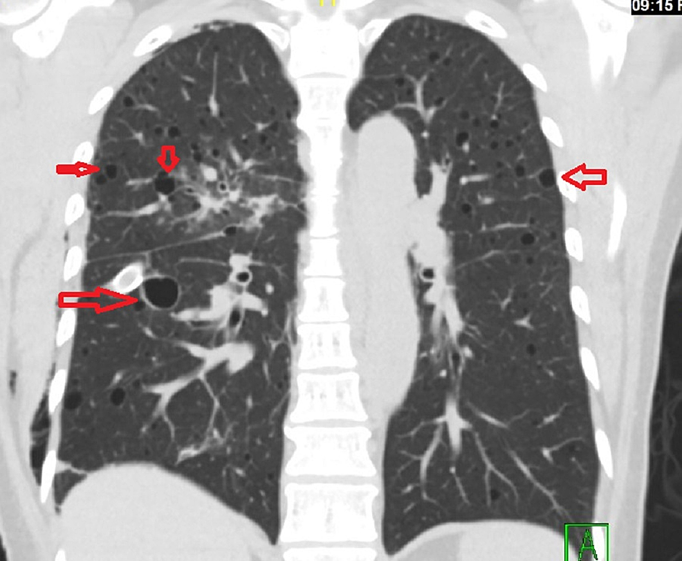 Coronal-section:-Chest-computed-tomography-scan-showing-multiple-cysts