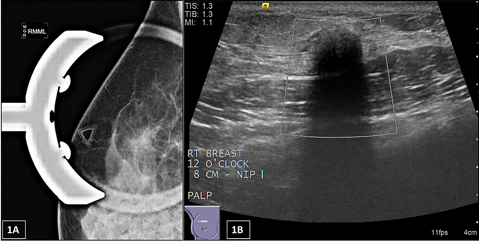 (A)-Mammography-of-the-right-breast-from-one-of-the-patients-with-a-granular-cell-tumor.-Triangle-marker-over-the-palpable-area-of-concern;-there-is-an-irregular-mass-with-indistinct-margins.-(B)-Ultrasound-shows-an-irregular-hypoechoic-mass-with-indistinct-margins-and-posterior-shadowing-with-no-vascularity-measuring-9-x-8-x-8-mm.--The-radiology-categorized-this-lesion-as-BI-RADS-Category-5-–-highly-suspicious-for-malignancy,-biopsy-recommended.