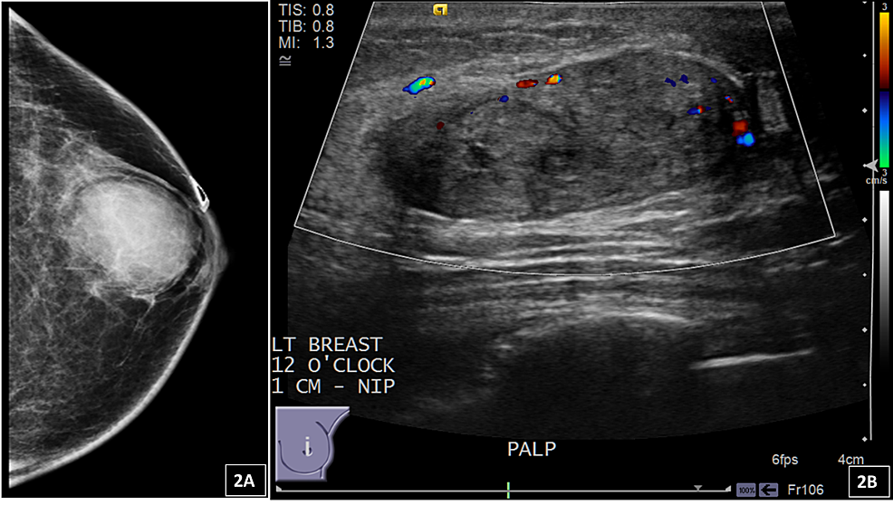 (A)-Mammography-of-the-left-breast-from-one-of-the-patients-with-myofibroblastoma-demonstrates-an-oval-mass-with-circumscribed-margins-measuring-34-mm.-(B)-Ultrasound-shows-an-isoechoic-oval-mass-with-circumscribed-margins-and-posterior-acoustic-enhancement.-The-radiology-categorized-this-lesion-as-BI-RADS-Category-4-B-–-suspicious-for-malignancy,-biopsy-recommended.