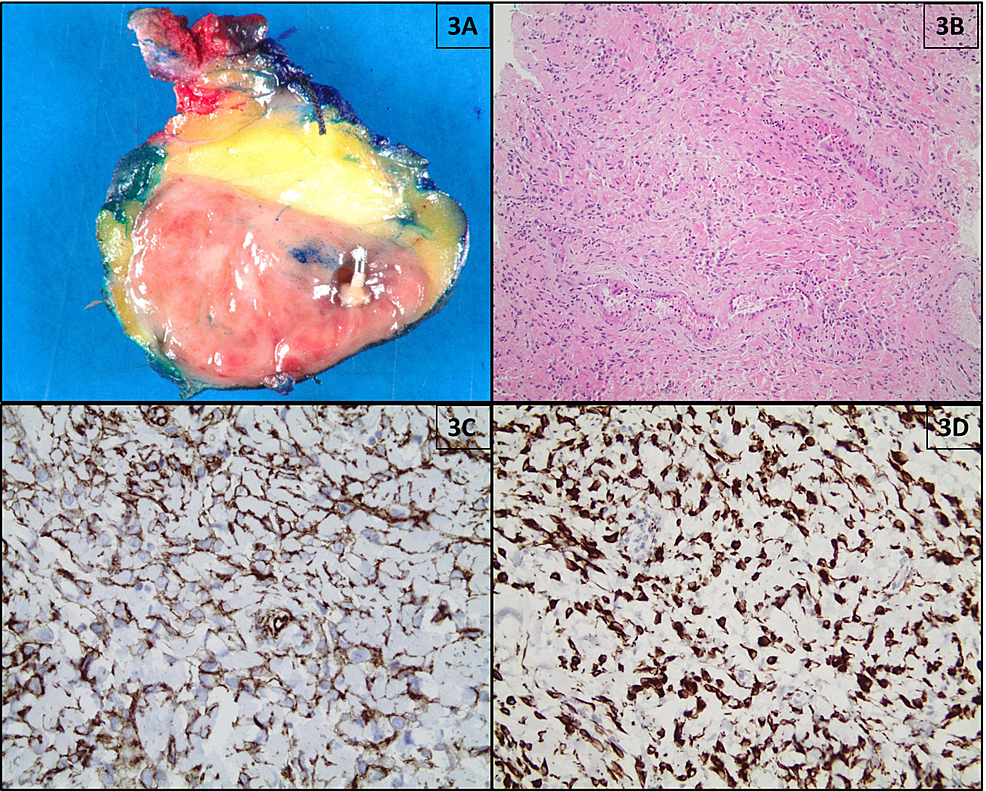 Pathological-findings-of-MFB-(patient-#7);-(A)-Resection-specimen-shows-a-tan-pink,-well-circumscribed,-vaguely-lobulated-solid-mass-with-a-metallic-clip;-(B)-Hematoxylin-and-eosin-(H&E)-staining-shows-uniform,-slender,-bipolar-spindle-cells-haphazardly-arranged-in-small-fascicular-clusters-separated-by-bands-of-eosinophilic-hyalinized-collagen-(100x-magnification);-(C)-Tumor-cells-exhibit-immunoreactivity-for-CD34-by-immunohistochemistry-(×400-magnification).-(D)-Tumor-cells-exhibit-immunoreactivity-for-desmin-by-immunohistochemistry-(×100-magnification).
