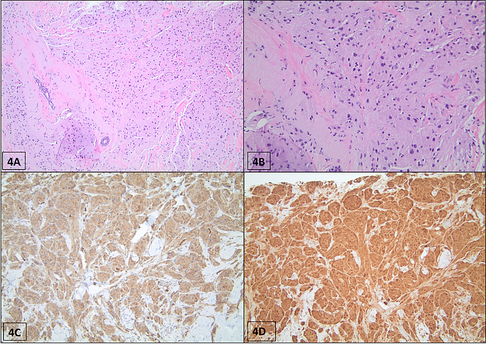 Histopathological-section-of-GCT-(patient-#4).-(A)-H&E-staining-shows-nests-of-tumor-cells-distributed-between-collagen-bands-with-ill-defined-borders-and-infiltrative-growth-into-the-fat-(40x-magnification).-(B)-The-tumor-cells-are-large-and-polygonal-with-finely-granular-eosinophilic-cytoplasm-and-round-bland-nuclei-(200x-magnification).-(C)-Tumor-cells-exhibit-immunoreactivity-for-CD68-by-immunohistochemistry-(×200-magnification).-(D)-S-100-staining-displaying-positive-activity-on-the-granular-cells,-highlighting-cytoplasmic-granularity-(x100-magnification).