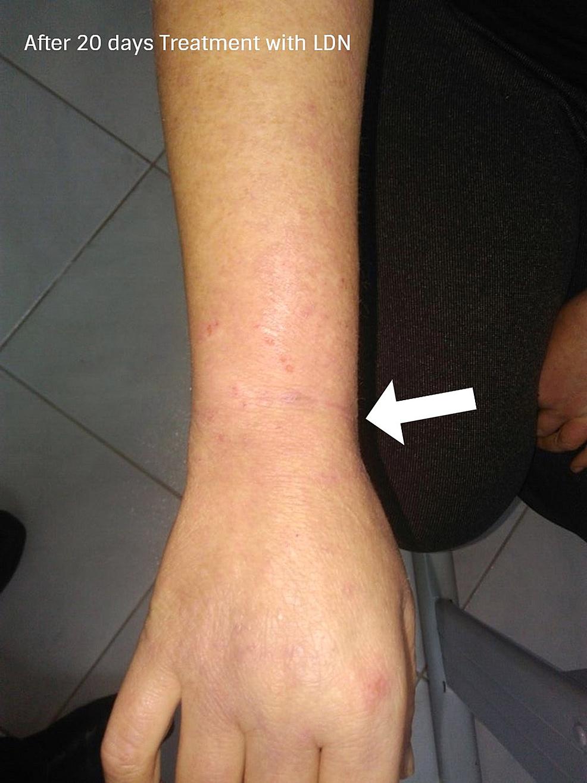 Dopo-20-giorni-di-trattamento-con-LDN