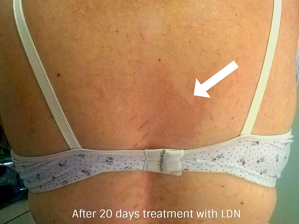 Dopo-20-giorni-di-trattamento-con-basso dosaggio-naltrexone- (posteriore-dorsale-back-regione)