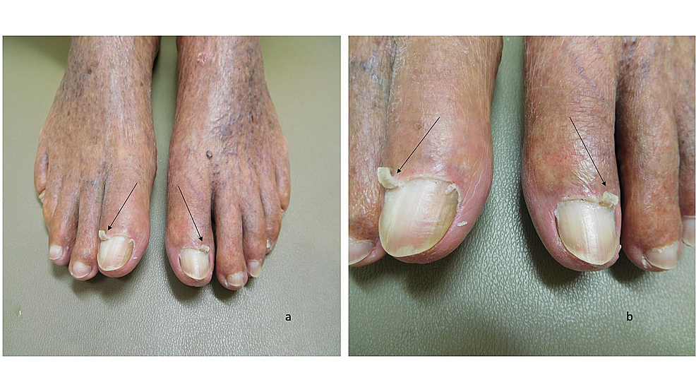Curling-cuticles-(eponychogryphosis)-of-the-great-toes:-both-feet