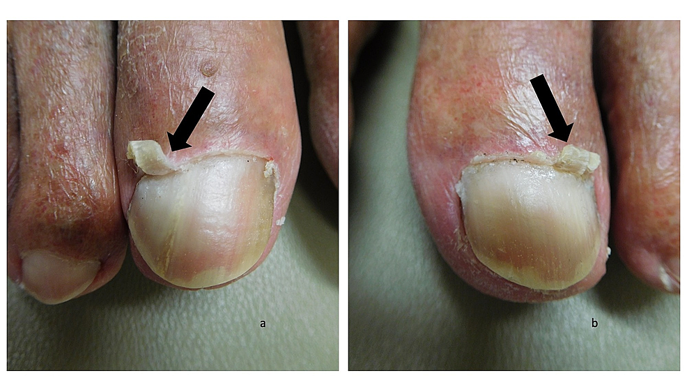 Curling-cuticles-(eponychogryphosis)-of-the-great-toes:-right-and-left-great-toes