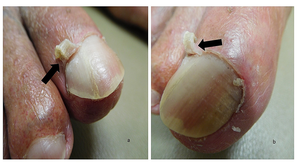 Curling-cuticles-(eponychogryphosis)-of-the-great-toes:-right-great-toe