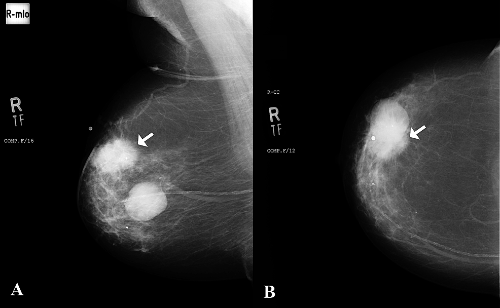 A)-Mediolateral-oblique-and-B)-craniocaudal-views-of-mammogram-in-an-82-year-old-female