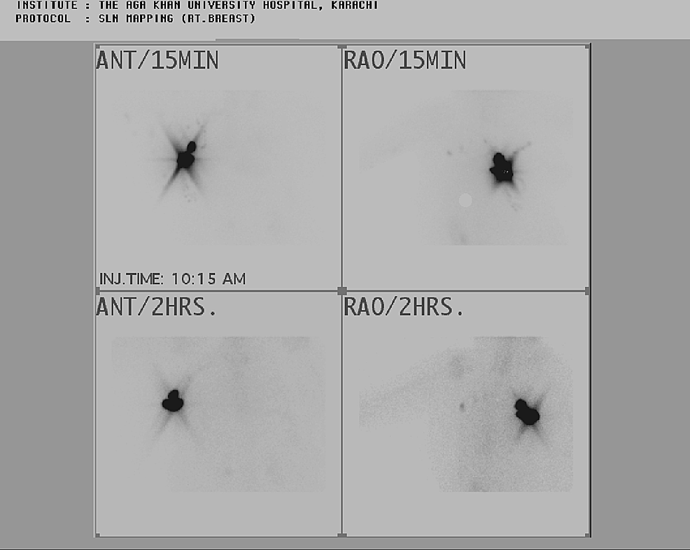 Radionuclide-sentinel-node-mapping-and-scintigraphy