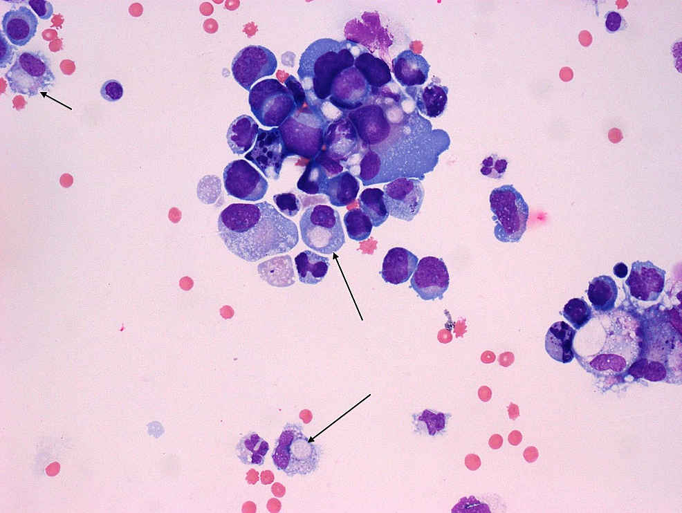 H&E-stain-with-signet-ring-cell-morphology