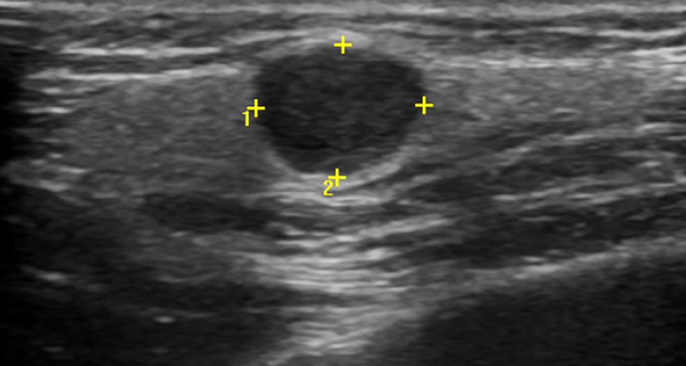 Ultrasonography-showing-the-tumor-in-front-of-parotid-gland-above-the-masseter-muscle