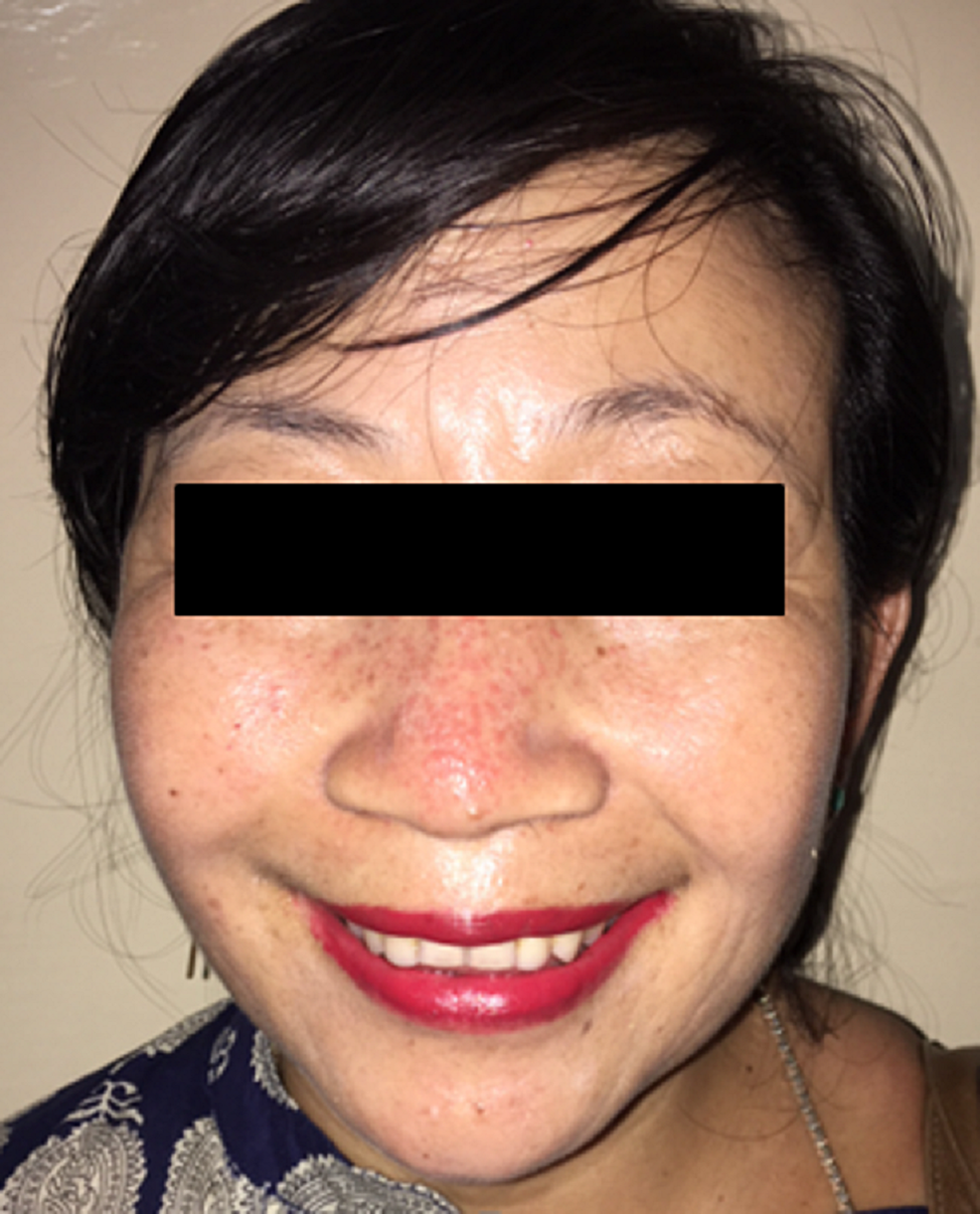 Patient's-face-at-the-eight-month-postoperative-follow-up-evaluation