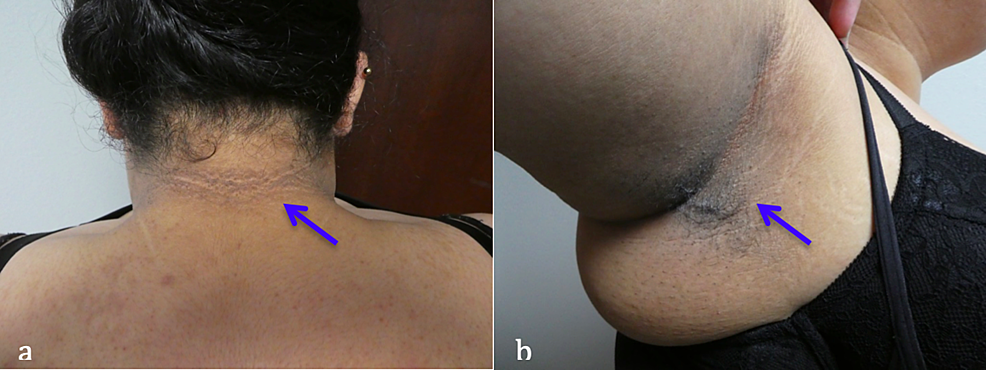 Acanthosis-nigricans-concurrently-present-in-a-woman-with-confluent-and-reticulated-papillomatosis-and-polycystic-ovarian-syndrome.