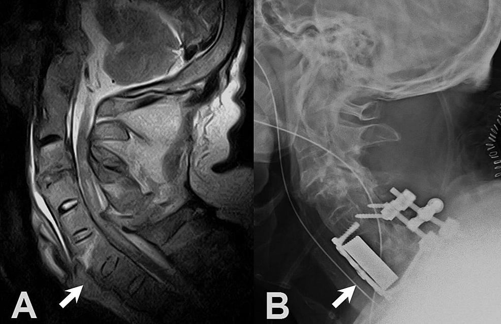 -Lateral-radiograph:-preoperative-and-postoperative