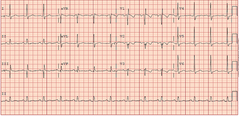 Preoperative-EKG-showing-NSR-with-first-degree-AVB,-incomplete-RBBB,-septal-Q-waves