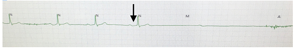 Postoperative-PR-prolongation-(arrow)-increased-from-baseline-EKG-with-sinus-bradycardia-and-eventually-sinus-arrest-leading-to-asystole