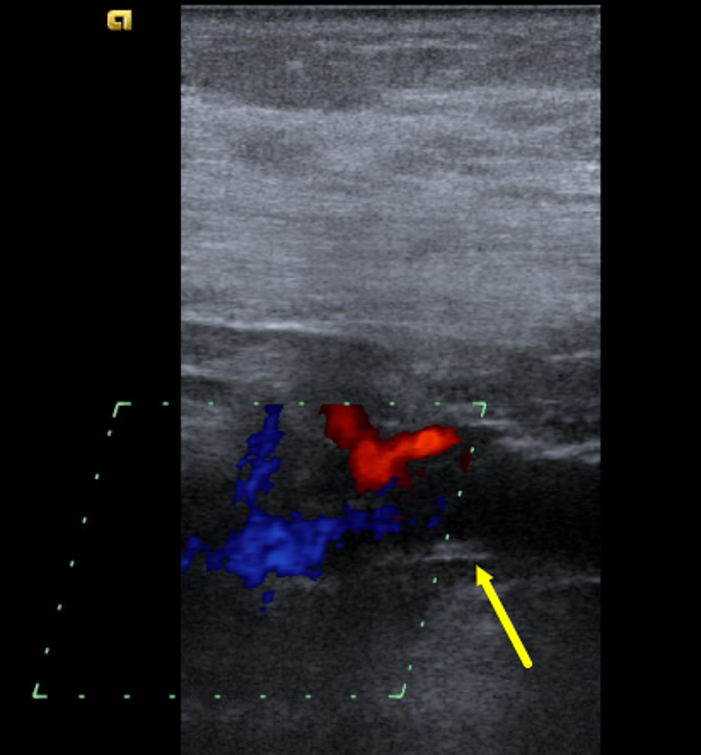 Venous-duplex-ultrasonography-of-the-neck-veins-in-color-mode