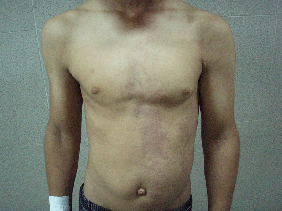 Multiple-cutaneous-port-wine-stains-on-the-left-side-of-the-anterior-trunk.