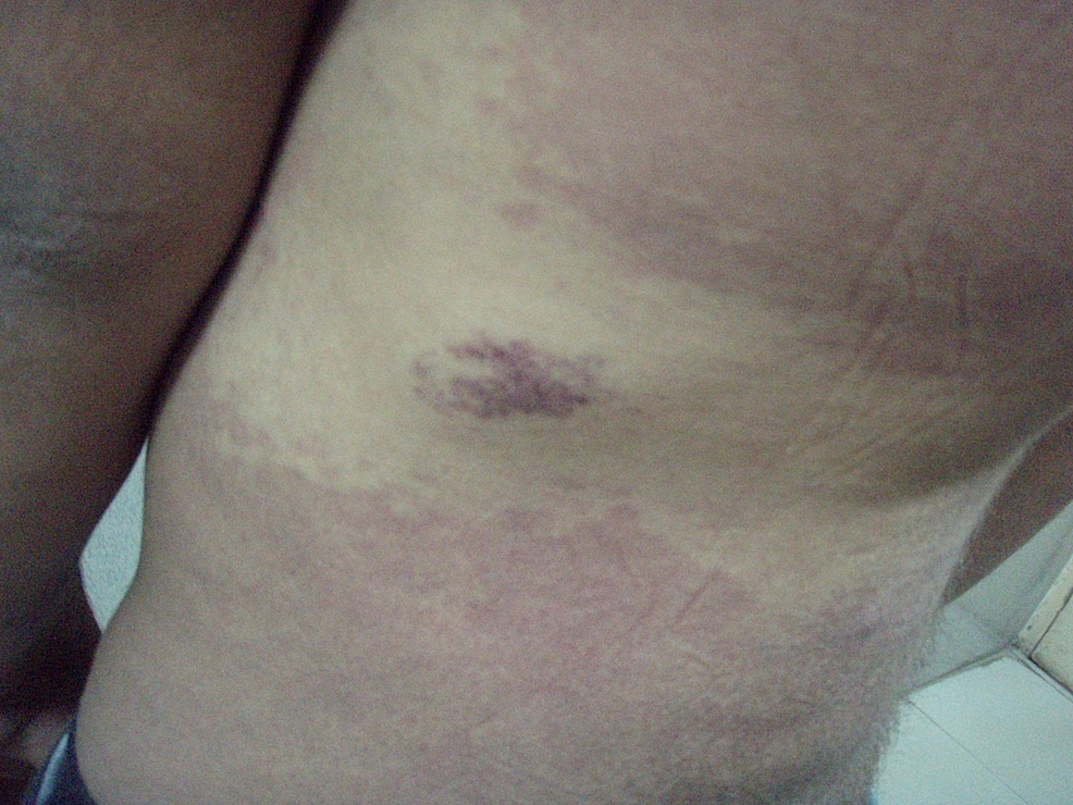 Multiple-cutaneous-port-wine-stains-with-telangiectasia-on-the-left-side-of-the-posterior-trunk.