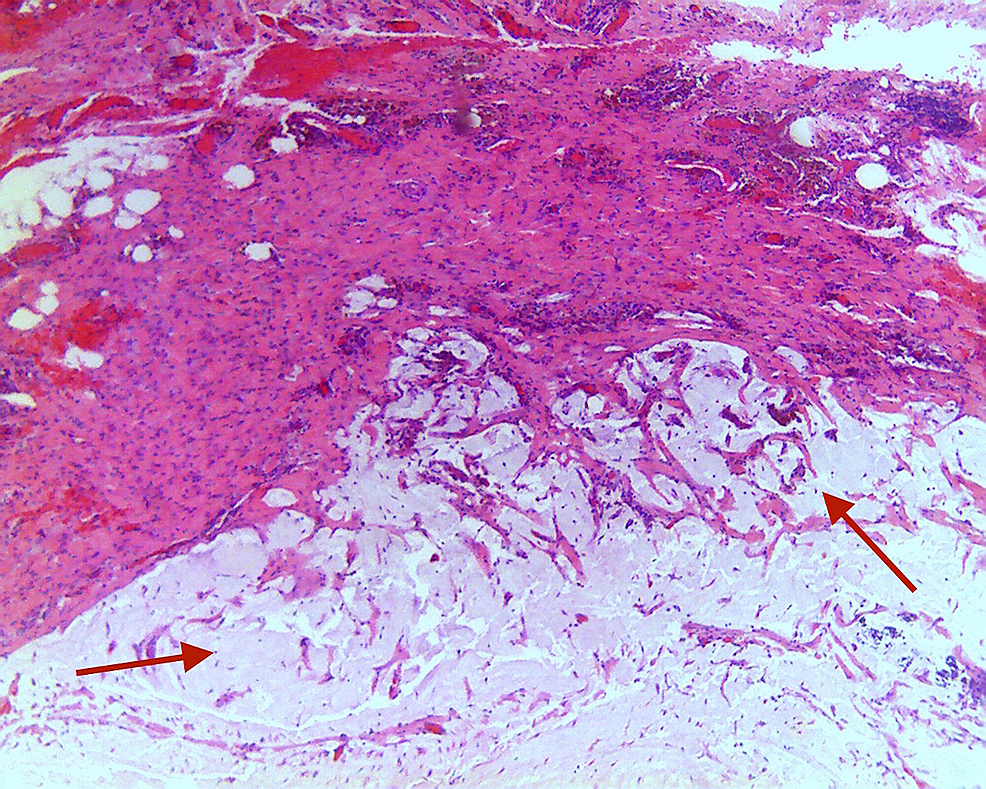 Hematoxylin-and-eosin-stain-showing-diffuse-necrosis-with-invasive-mucinous-adenocarcinoma-exhibiting-extensive-mural-replacement-by-large,-irregular,-dissecting-pools-of-mucin-(red-arrows),-containing-free-floating-neoplastic-epithelium-