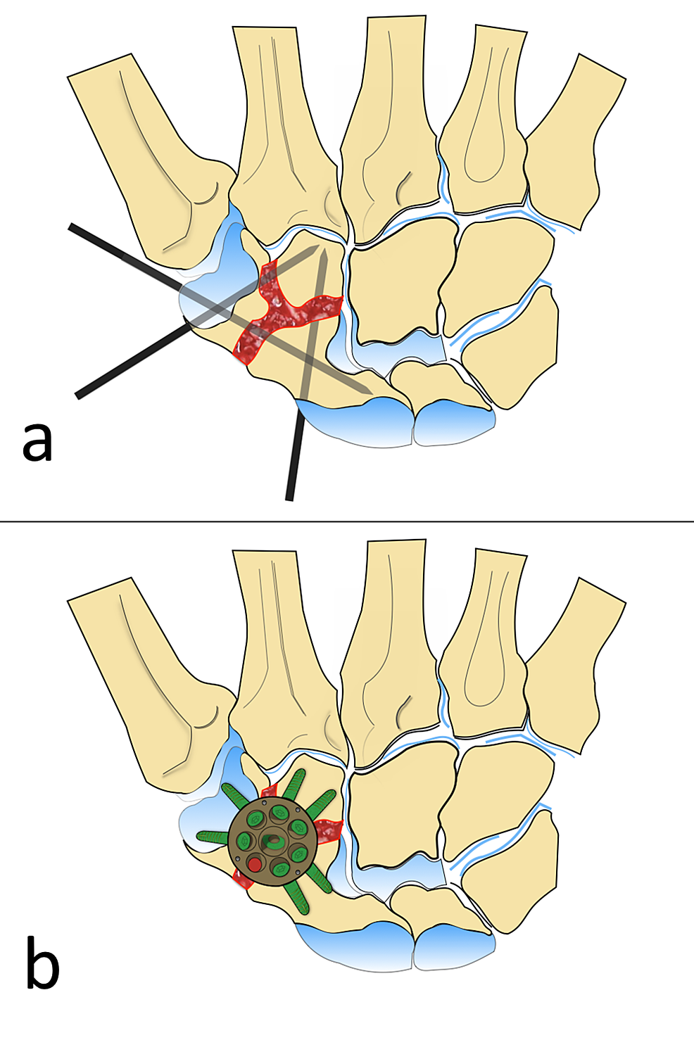 Illustration-Showing-the-Surgical-Technique