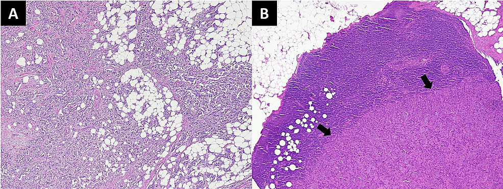Histopathology-slides-of-the-patient