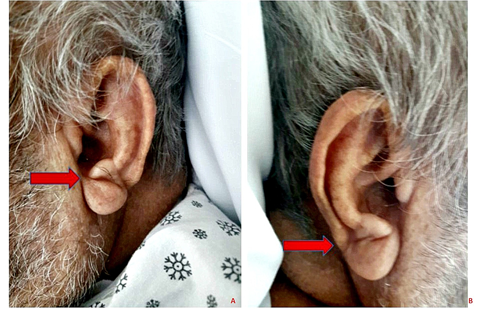 Bilateral-diagonal-earlobe-creases-as-indicated-by-arrows