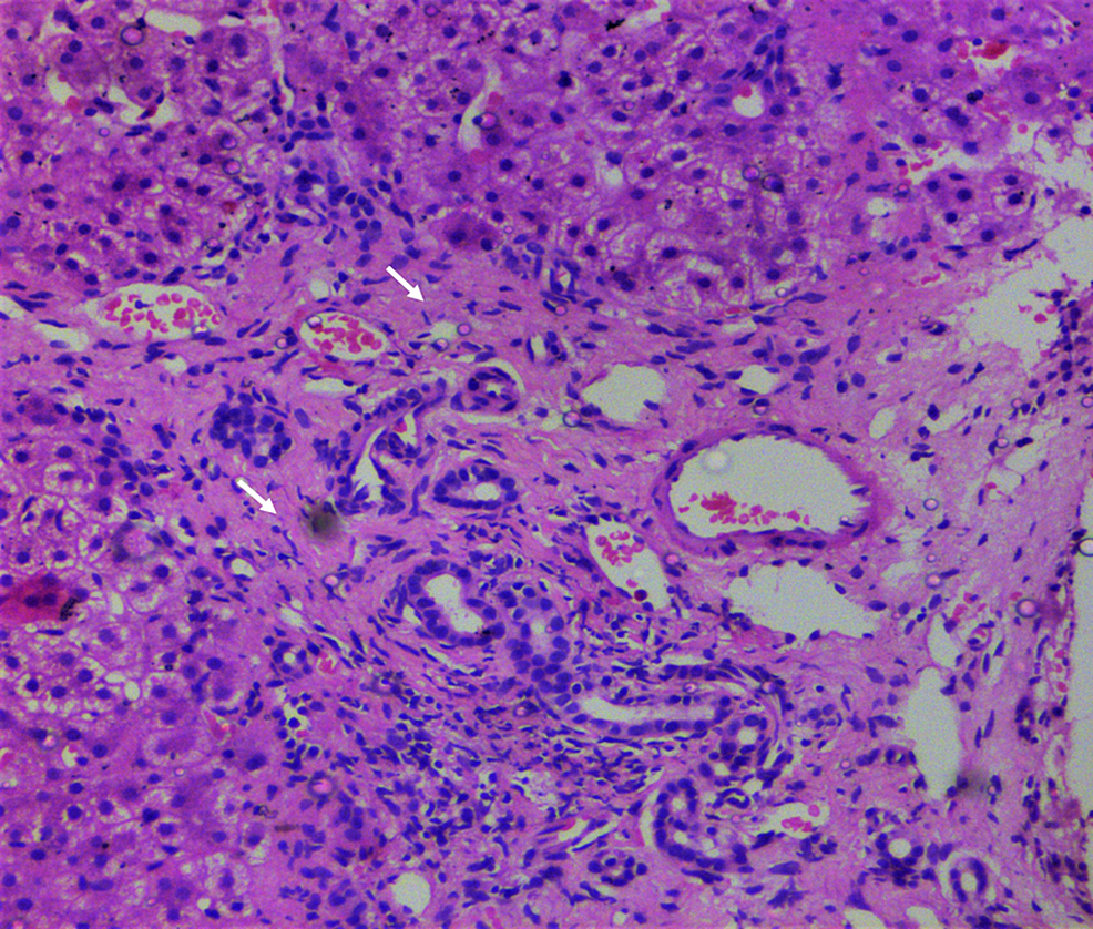 Liver-biopsy-findings-during-follow-up.
