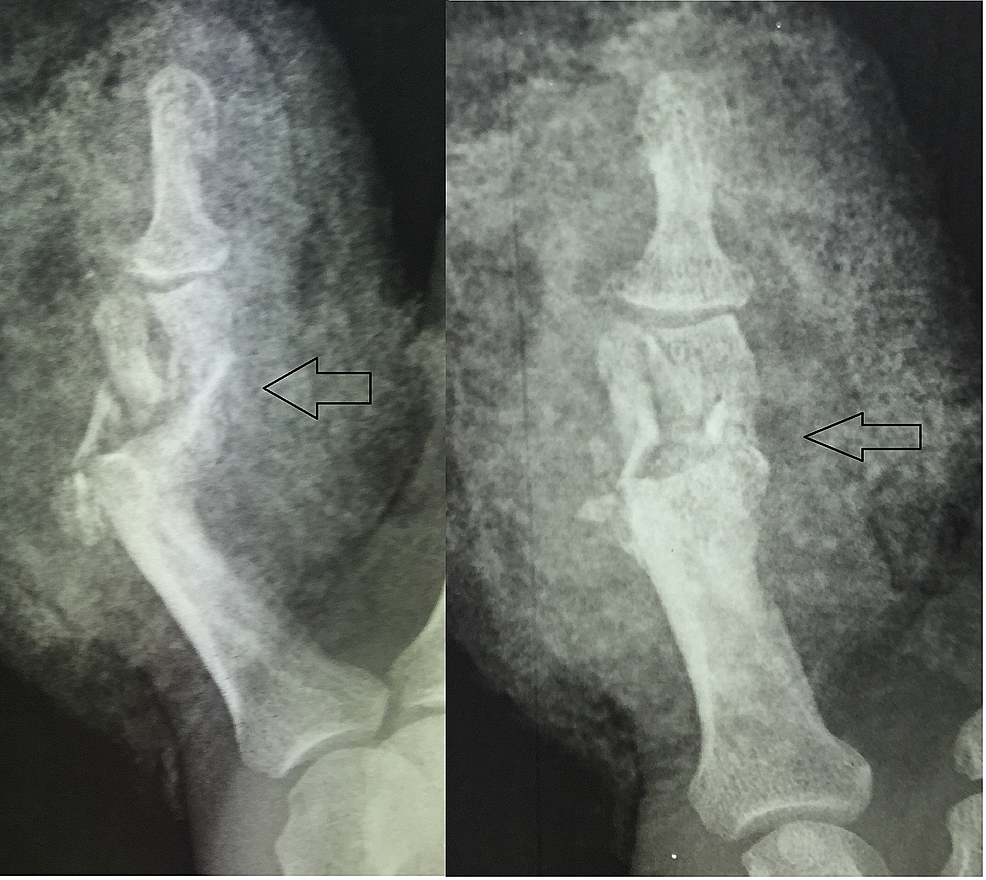 Plain-radiographs:-severely-comminuted,-intra-articular-fracture-of-the-middle-phalanx