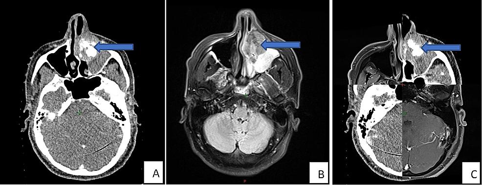 Pre-treatment-imaging