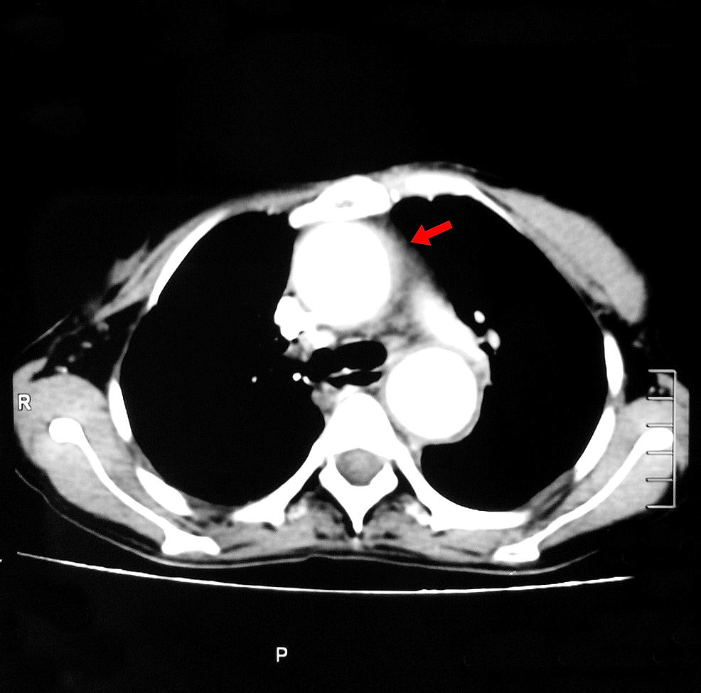 Computed-tomography-(CT)-scan-with-contrast-of-chest-showing-dilation-of-aorta.