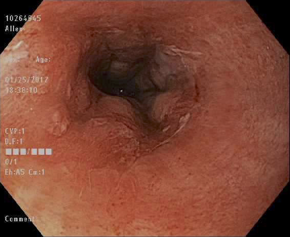 Mid-esophagus-–-four-months-post-operative.