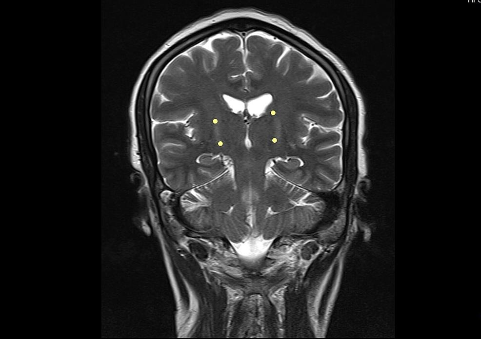 Brain-MRI---view-4