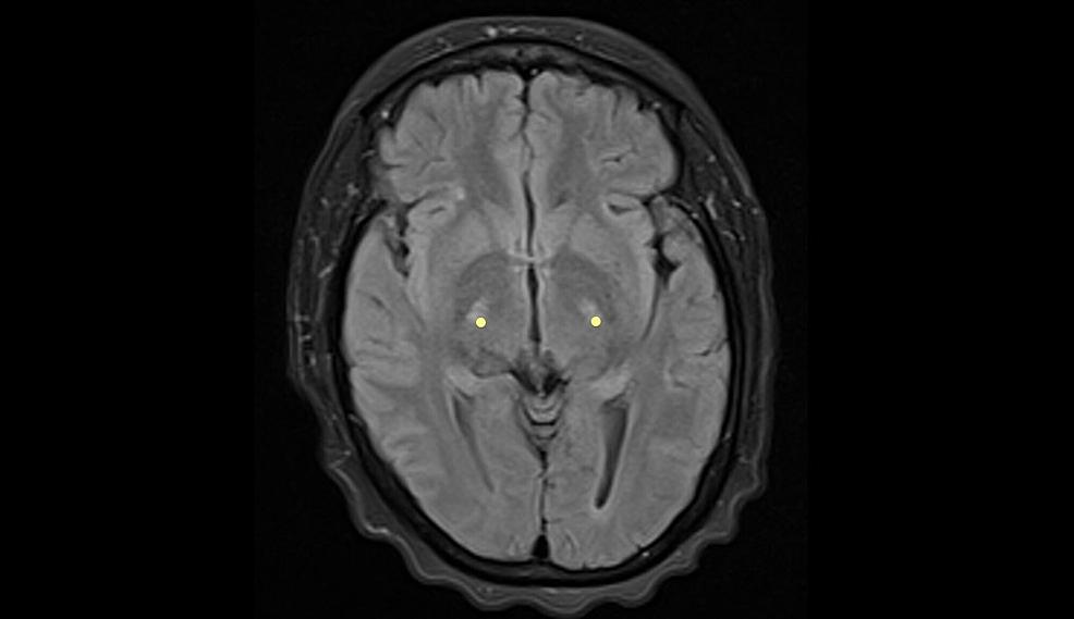 Brain-MRI---view-2