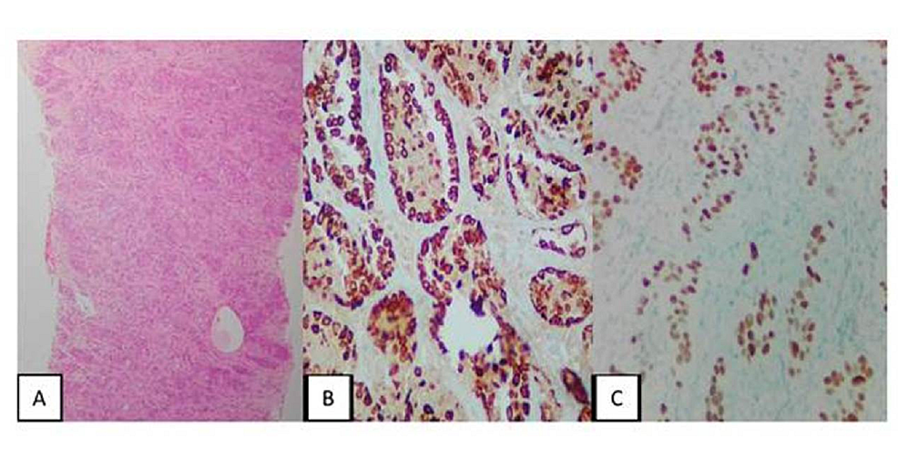 Fine-Needle-Aspiration-Biopsy-of-the-Paravertebral-Mass,-Immunohistochemistry
