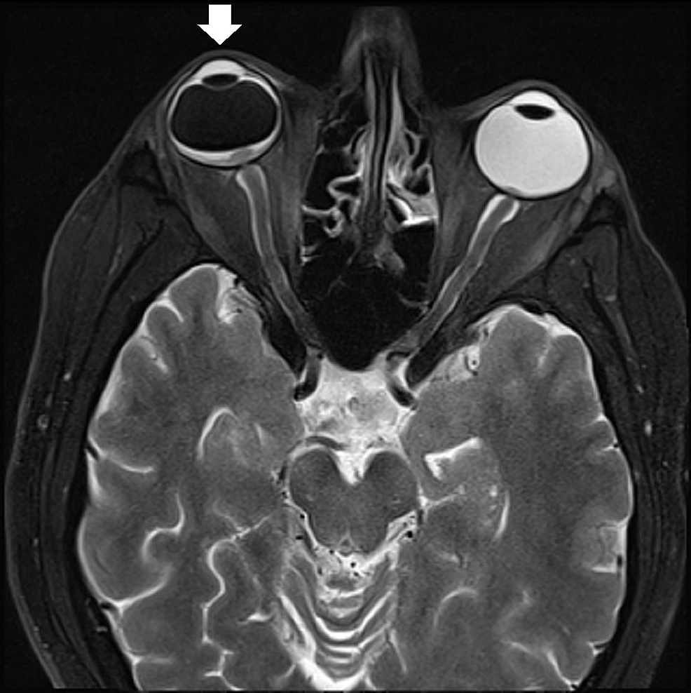 An-orbital-magnetic-resonance-imaging-(MRI)-revealed-evidence-of-an-enhancing-retinal-lesion-centered-on-the-optic-disc-with-diffuse-restriction-consistent-with-lymphomatous-infiltration;-proptosis-of-the-right-eye-was-also-noted