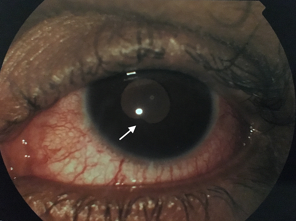 Left-eye-exam.-Conjunctival-injection-with-cells-in-the-anterior-chamber-and-posterior-synechiae-at-7-O'-clock-position-(white-arrow).
