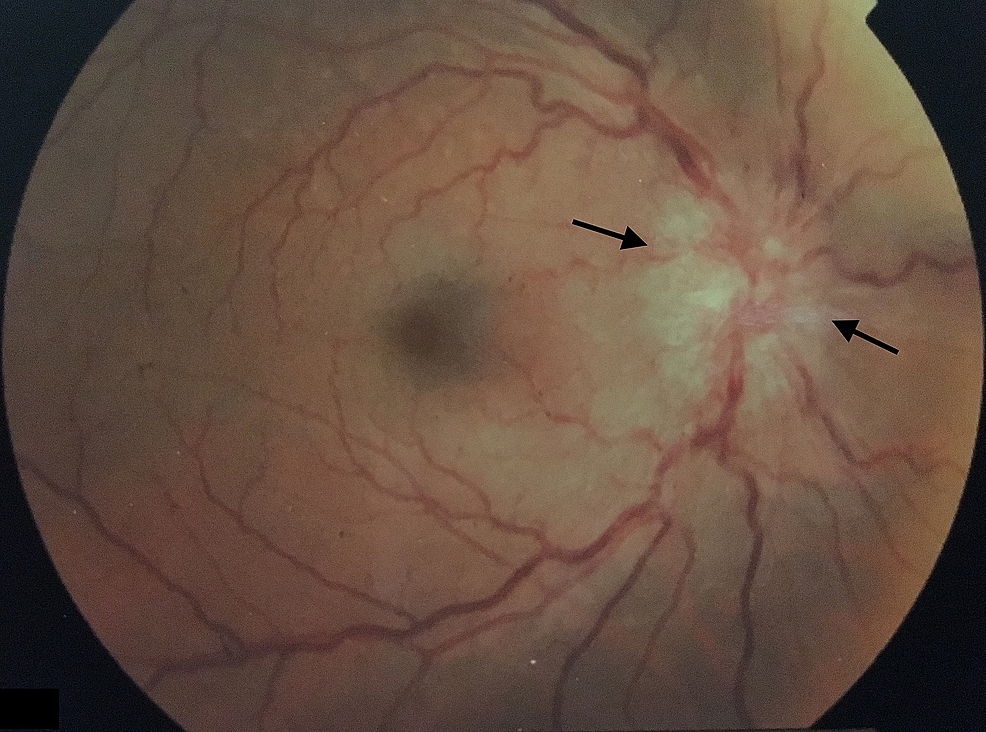 Left-eye-indirect-ophthalmoscopy.-Papilledema-with-blurred-disk-margins-(black-arrows).