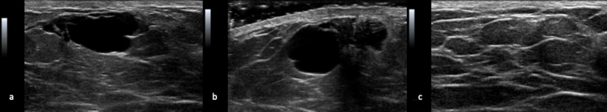 Cureus Benign Breast Cyst In A Young Male