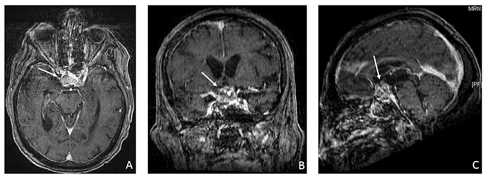 Gadolinium-enhanced-T1-weighted-magnetic-resonance-imaging-(MRI)-scans-demonstrating-a-large-pituitary-macroadenoma-with-hemorrhage.-Histology-revealed-pituitary-(adenoma)-infarction-compressing-the-optic-chiasm-(white-arrow).-Axial-(A),-coronal-(B),-and-sagittal-(C)-views-of-the-brain.