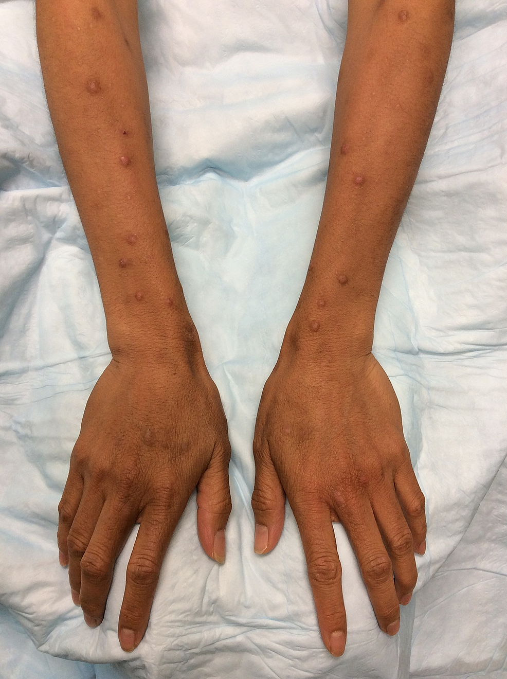 Hyperpigmentation-of-distal-forearms-and-dorsal-hands